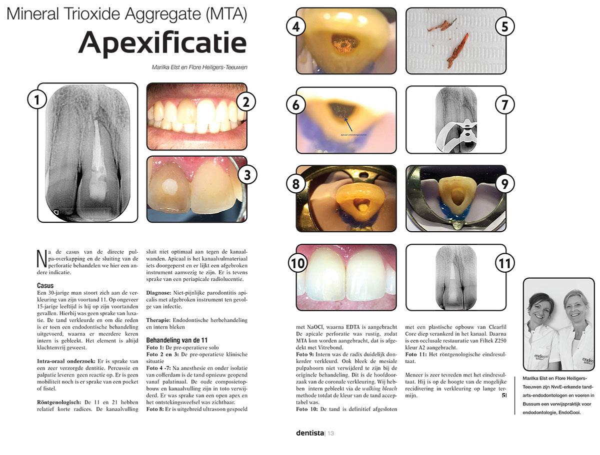 Endogooi Dentista